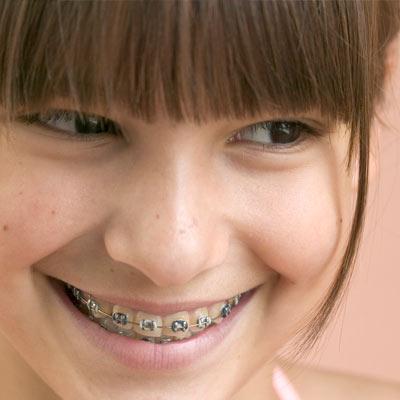 Orthodontics and Braces. Boca Raton, Florida