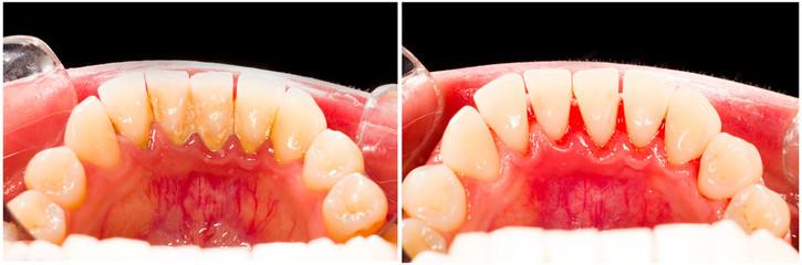 teeth-with-tartar
