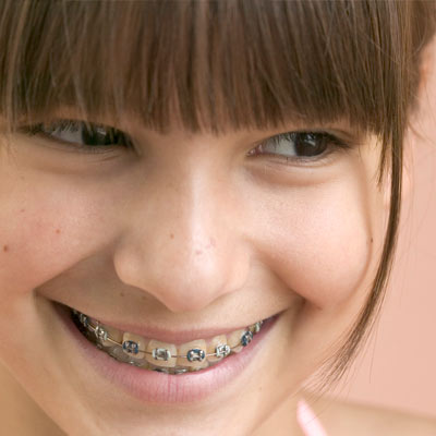 Orthodontics and Braces. Boca Raton, Florida