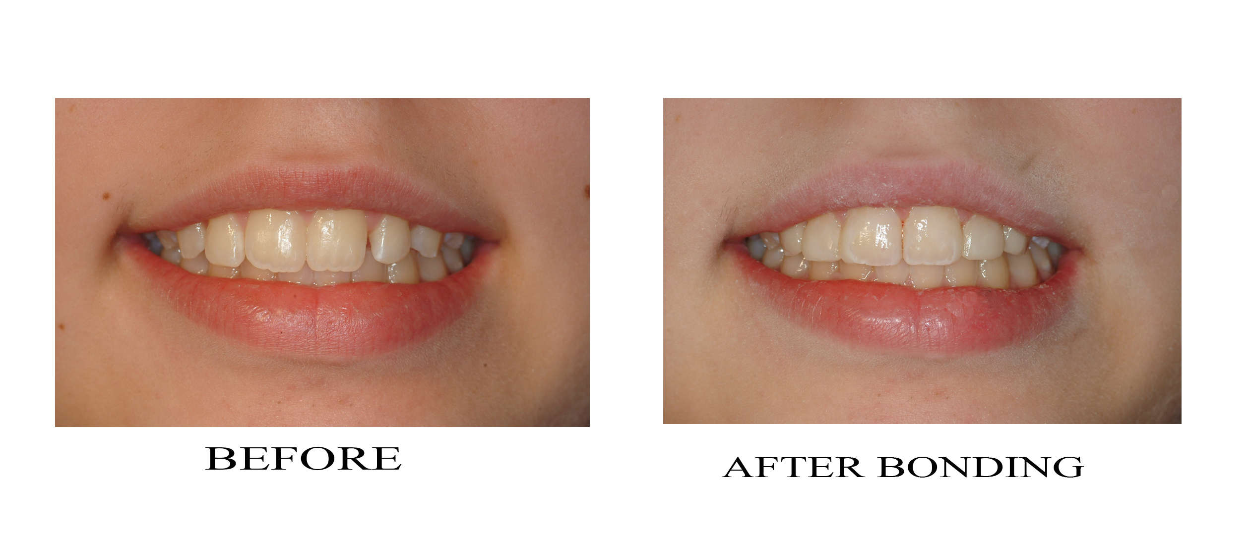 All about Cosmetic Dentistry Bonding