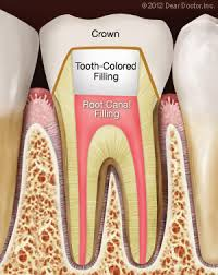 Why is a Crown Needed After a Root Canal. - Barbag dental ...