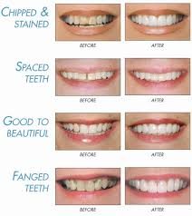 Dentures Vs Dental Implants Learn The Differences From