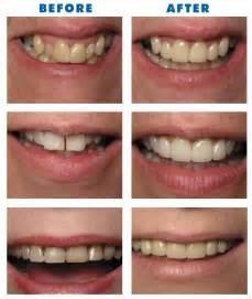 виниры для зубов perfect smile veneers видео
